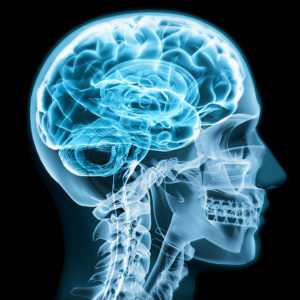 Integrativecraniopraxis Blog Amygdala